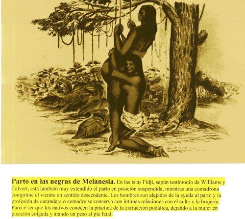 Nacer en otra cultura. Nacer en otro tiempo. Negras de Melanesia
